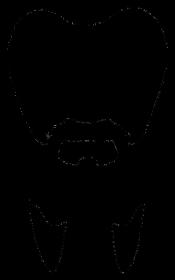 Drwaloząb
